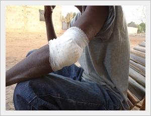 Kédougou : Agression sur la route de Thiokoye