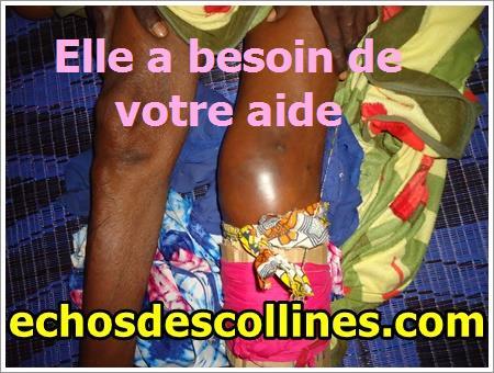 Kédougou: Elle se brise la jambe en allant récupérer sa bourse de sécurité familiale