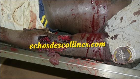 Kédougou: Encore un jeune tué froidement par des hommes de tenue